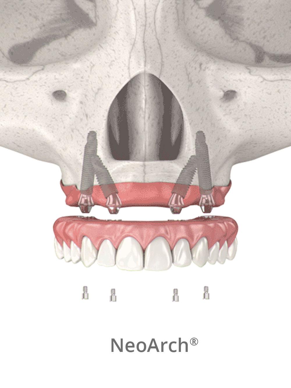 NeoArch same day teeth